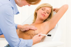 breast enhancement surgery | St. Louis, MO | Dr. Judith Gurley