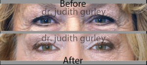 Upper Eyelid Lift in st. louis mo | Dr. Judith Gurley