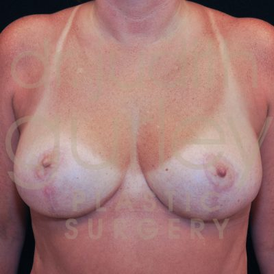 Breast Reduction Surgery Before & After Patient # 2053