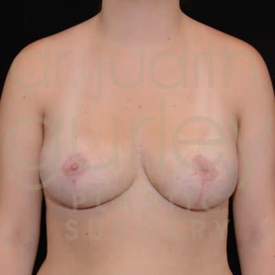 Breast Reduction Surgery Before & After Patient # 2219