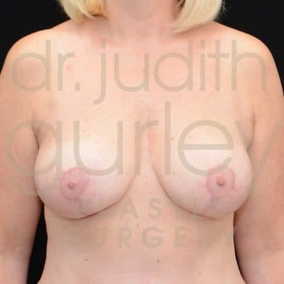 Breast Reduction Surgery Before & After Patient # 2335