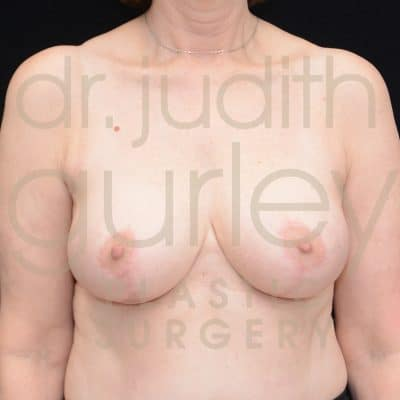 Breast Reduction Surgery Before & After Patient # 2711