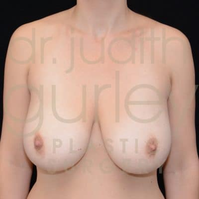 Breast Reduction Surgery Before & After Patient # 2946