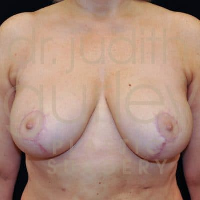 Breast Reduction Surgery Before and After Results
