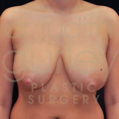 Breast Reduction Surgery Before & After Patient # 4452