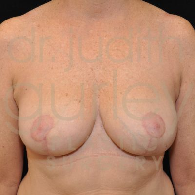 Breast Reduction Surgery Before & After Patient # 4883