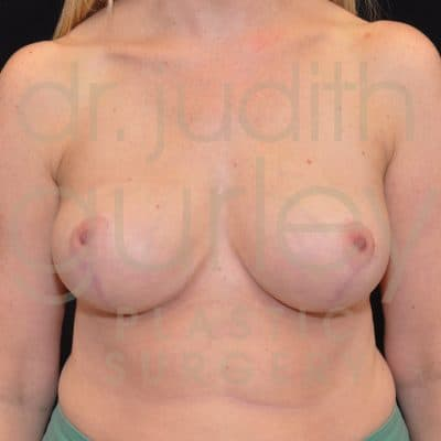 Breast Reduction Surgery Before & After Patient # 7074