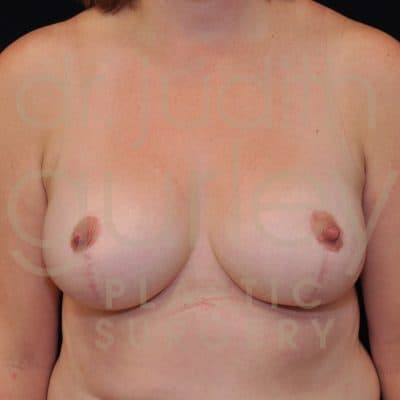 Breast Reduction Surgery Before & After Patient # 9437
