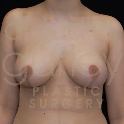 Breast Reduction Surgery Before & After Patient # 2523