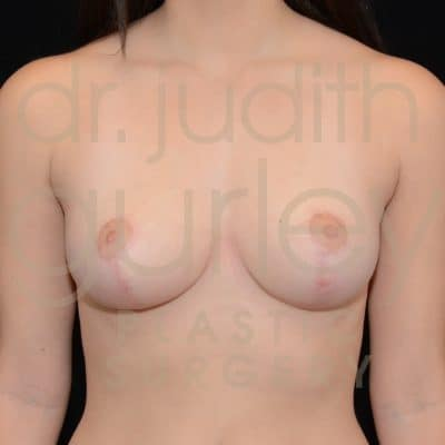 Breast Reduction Surgery Before & After Patient # 2852