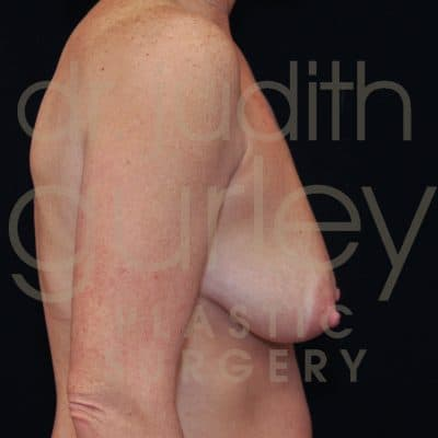 Breast Lift Before & After Patient #1622