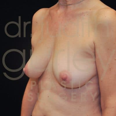 Breast Augmentation and Lift Before & After Patient #1823