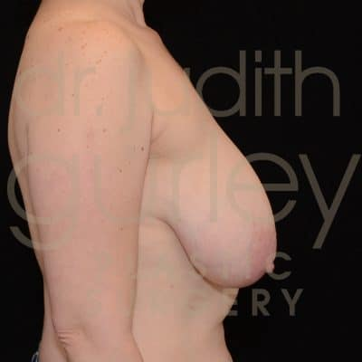 Breast Augmentation and Lift Before & After Patient #2059