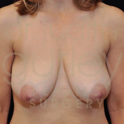 Breast Lift Before & After Patient #3376