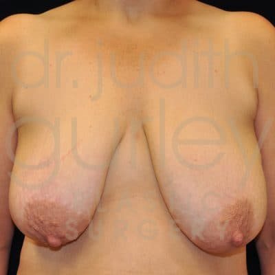 Breast Augmentation and Lift Before & After Patient #3412