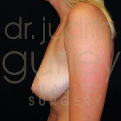 Breast Lift Before & After Patient #5028