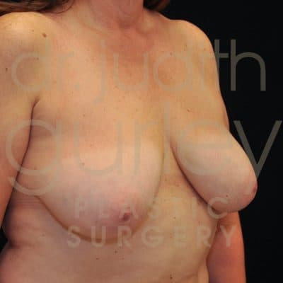 Breast Lift Before & After Patient #8482