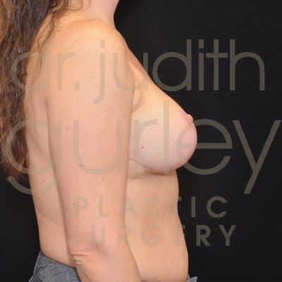 Breast Lift Before & After Patient #9491