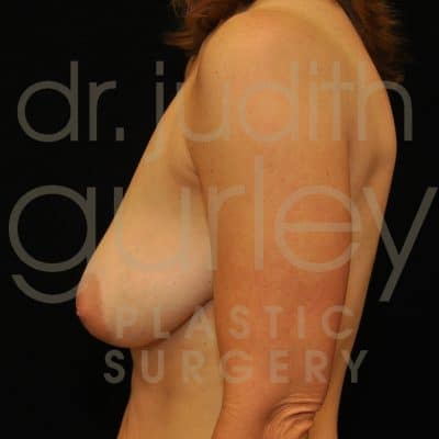Breast Augmentation and Lift Before & After Patient #1495