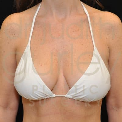 Breast Lift Before & After Patient #1542