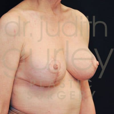 Breast Lift Before & After Patient #1589