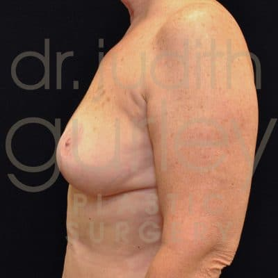 Breast Lift Before & After Patient #1730