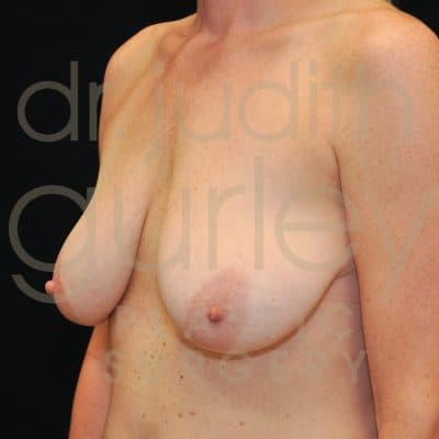 Breast Lift Before & After Patient #1824