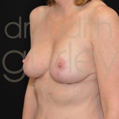 Breast Augmentation and Lift Before & After Patient #3119