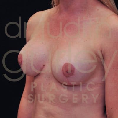 Breast Lift Before & After Patient #1965