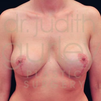 Breast Augmentation and Lift Before & After Patient #2012