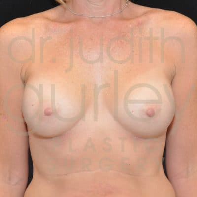 Breast Implant Removal / Replacement Before and After Results