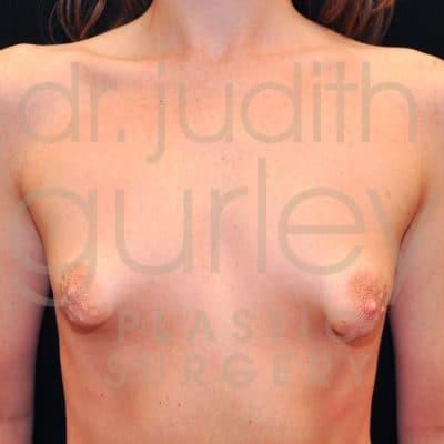 Tubular Breast Correction Before & After Results