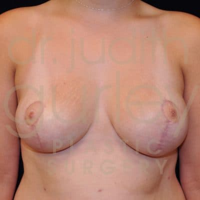 Breast Asymmetry Correction Surgery Before & After Patient # 3732