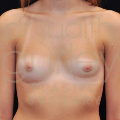 Breast Asymmetry Correction Surgery Before & After Patient # 6209