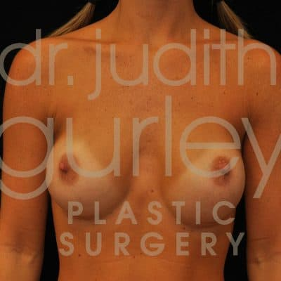Breast Augmentation Before & After Patient #1339