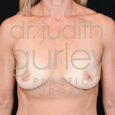 Breast Augmentation Before & After Patient #1669