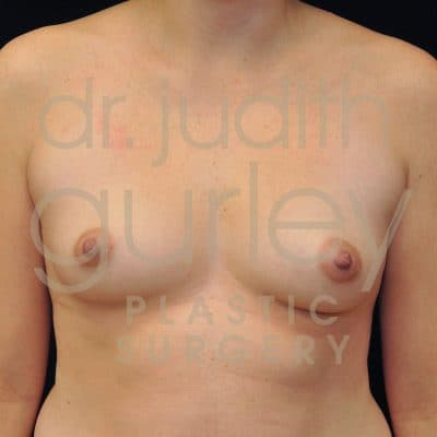 Breast Augmentation Before & After Patient #2101