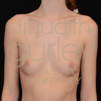 Breast Augmentation Before & After Patient #2152