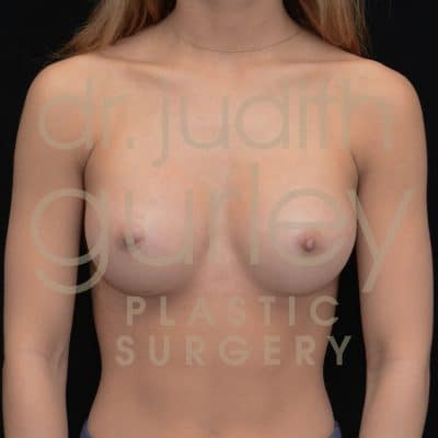 Breast Augmentation Before & After Patient #2199