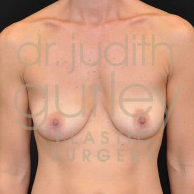 Breast Augmentation Before & After Patient #2387