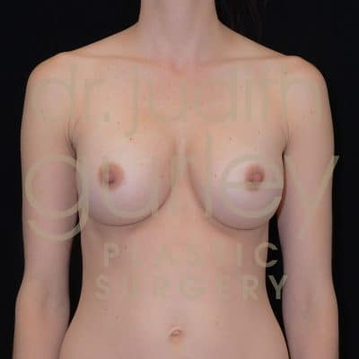 Breast Augmentation Before & After Patient #3562