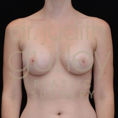 Breast Augmentation Before & After Patient # 3938