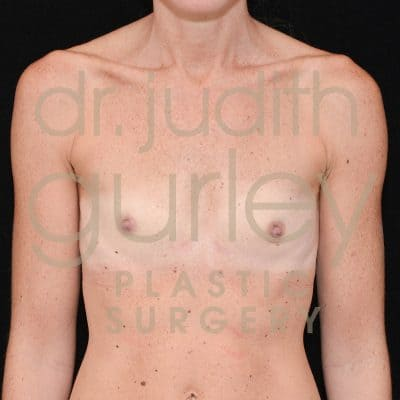 Breast Augmentation Before & After Patient #3985