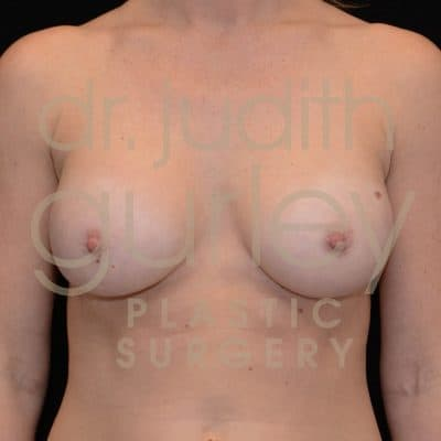 Breast Augmentation Before & After Patient #4302