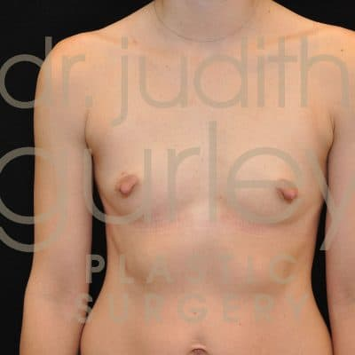 Breast Augmentation Before & After Patient #4932