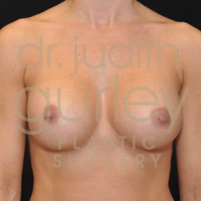 Breast Augmentation Before & After Patient #5293