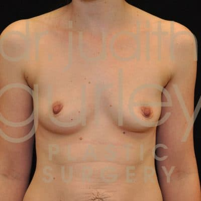 Breast Augmentation Before & After Patient #6616