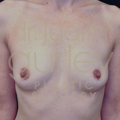 Breast Augmentation Before & After Patient #7228