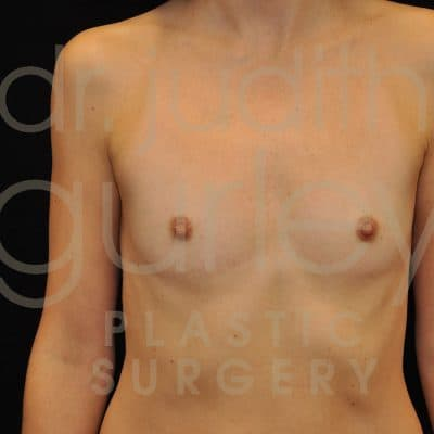 Breast Augmentation Before & After Patient #8231