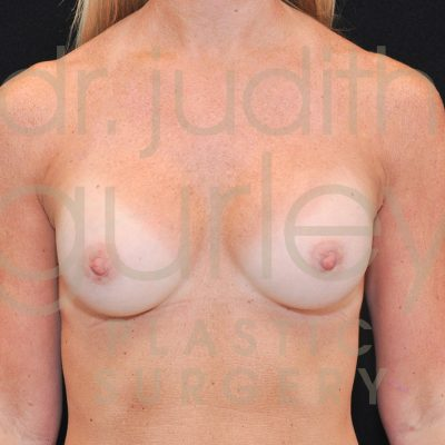 Breast Augmentation Before & After Patient #1093